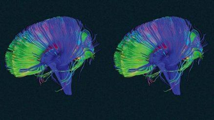 """¡Su cerebro tiene un botón de """"BORRAR"""" y aquí está cómo utilizarlo! How-to-use-the-delete-button-600x338"""
